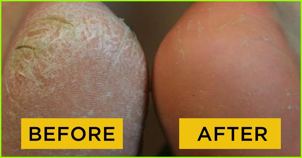 Amazing natural remedies to get rid of cracked heels-thatviralfeedcdn