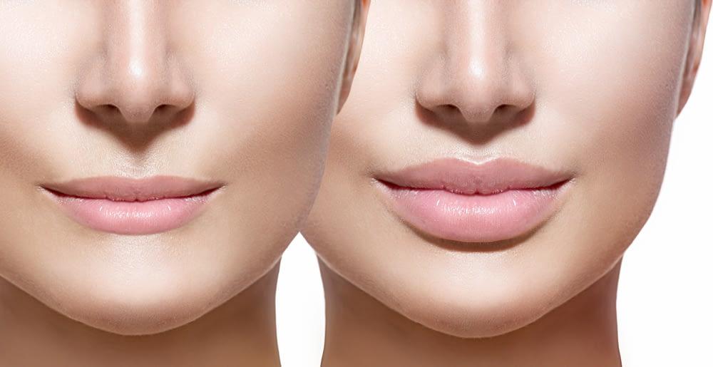 Lip fillers Revolutionizing the aesthetic industry-thatviralfeedcdn